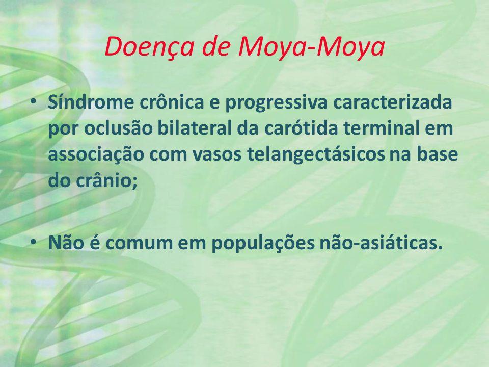 Doença de Moya-Moya Síndrome crônica e progressiva caracterizada por oclusão bilateral da carótida terminal em associação com vasos telangectásicos na base do crânio; Não é comum em populações não-asiáticas.