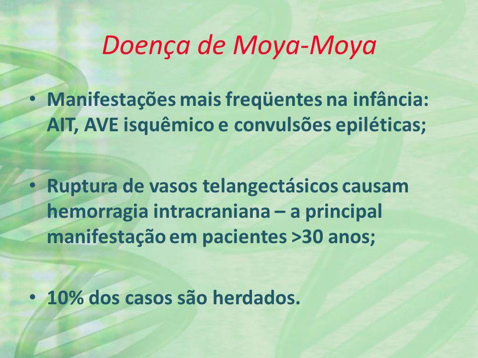 Doença de Moya-Moya Manifestações mais freqüentes na infância: AIT, AVE isquêmico e convulsões epiléticas; Ruptura de vasos telangectásicos causam hemorragia intracraniana – a principal manifestação em pacientes >30 anos; 10% dos casos são herdados.