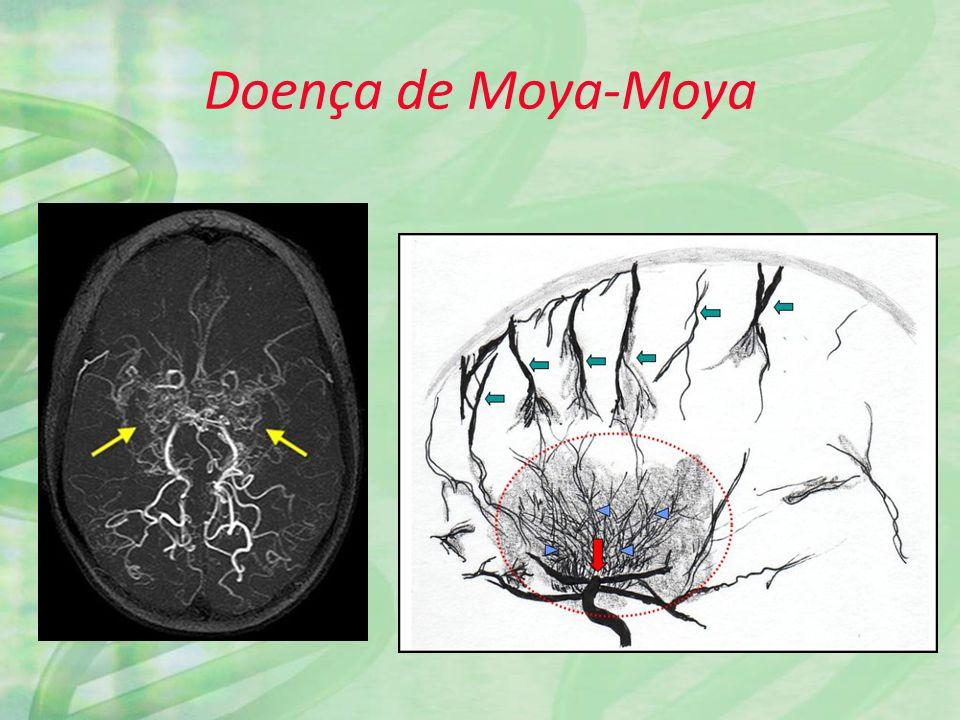 Doença de Moya-Moya