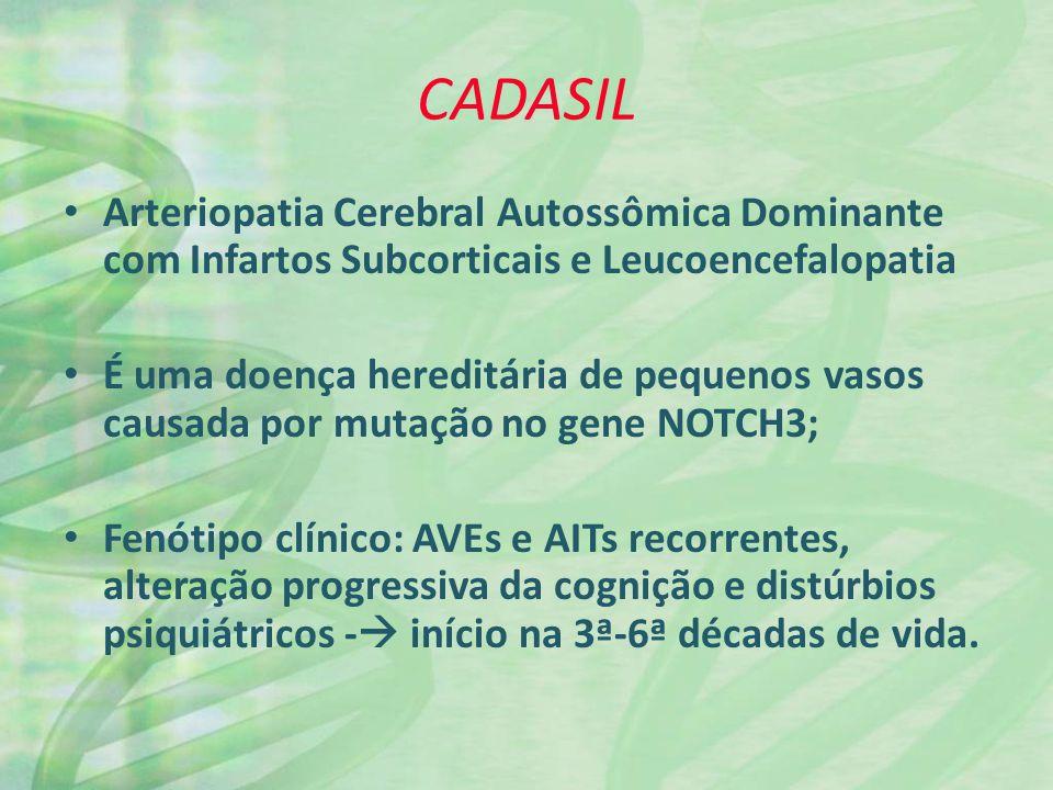 CADASIL 1/3 desenvolve enxaquecas com aura; Achados à neuroimagem similares aos encontrados em doenças esporádicas de pequenos vasos; Envolvimento bilateral da substância branca temporal anterior e da cápsula externa CARACTERÍSTICA ÚNICA E IMPORTANTE da doença.