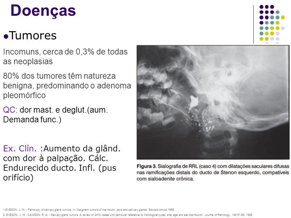 Doenças Tumores Incomuns, cerca de 0,3% de todas as neoplasias 80% dos tumores têm natureza benigna, predominando o adenoma pleomórfico QC: dor mast.