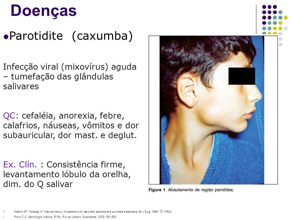 Doenças Parotidite (caxumba) Infecção viral (mixovírus) aguda – tumefação das glândulas salivares QC: cefaléia, anorexia, febre, calafrios, náuseas, v