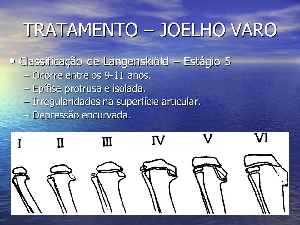 TRATAMENTO – JOELHO VARO Classificação de Langenskiöld – Estágio 5 Classificação de Langenskiöld – Estágio 5 – Ocorre entre os 9-11 anos. – Epífise pr