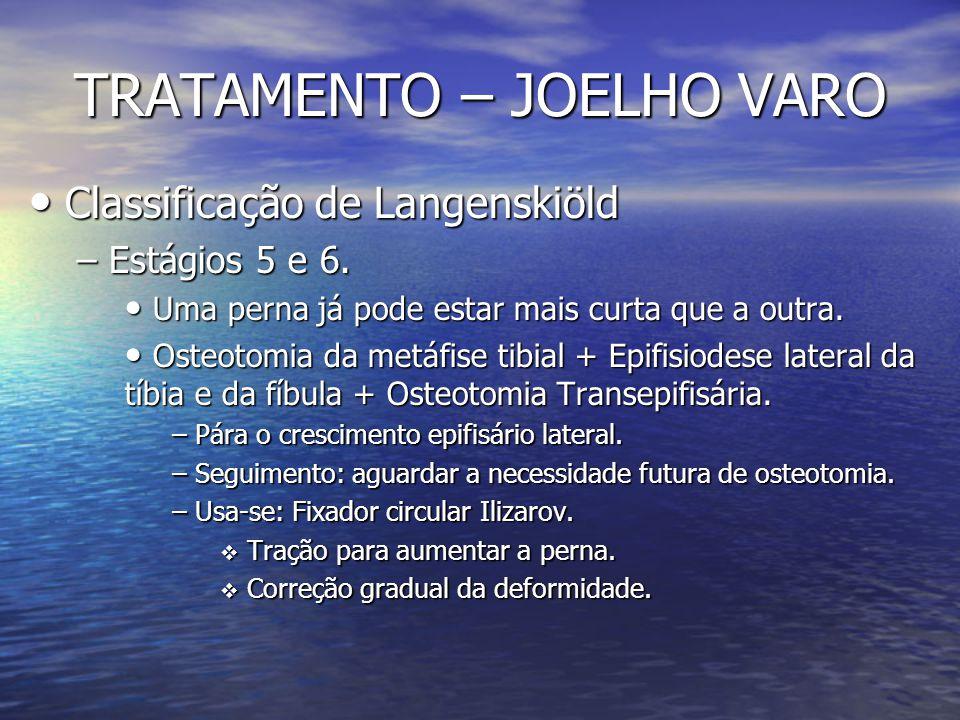 TRATAMENTO – JOELHO VARO Classificação de Langenskiöld Classificação de Langenskiöld – Estágios 5 e 6. Uma perna já pode estar mais curta que a outra.