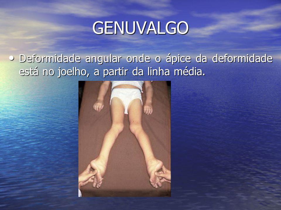 GENUVALGO Deformidade angular onde o ápice da deformidade está no joelho, a partir da linha média. Deformidade angular onde o ápice da deformidade est