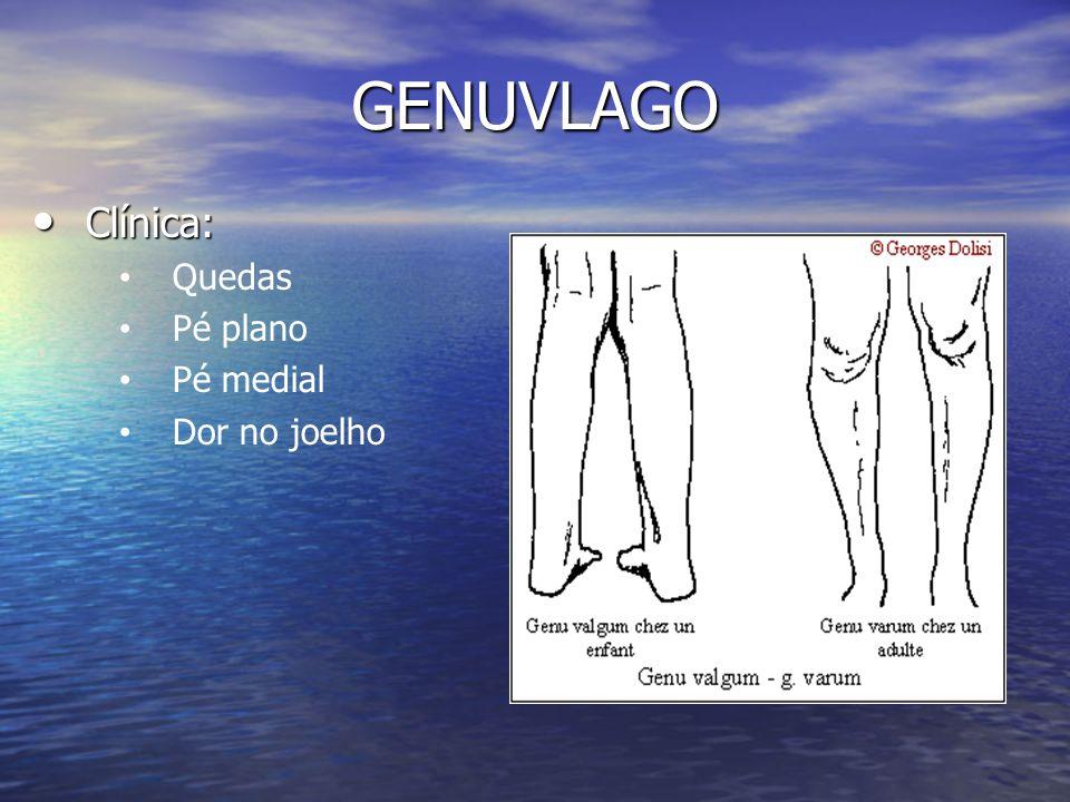 GENUVLAGO Clínica: Clínica: Quedas Pé plano Pé medial Dor no joelho