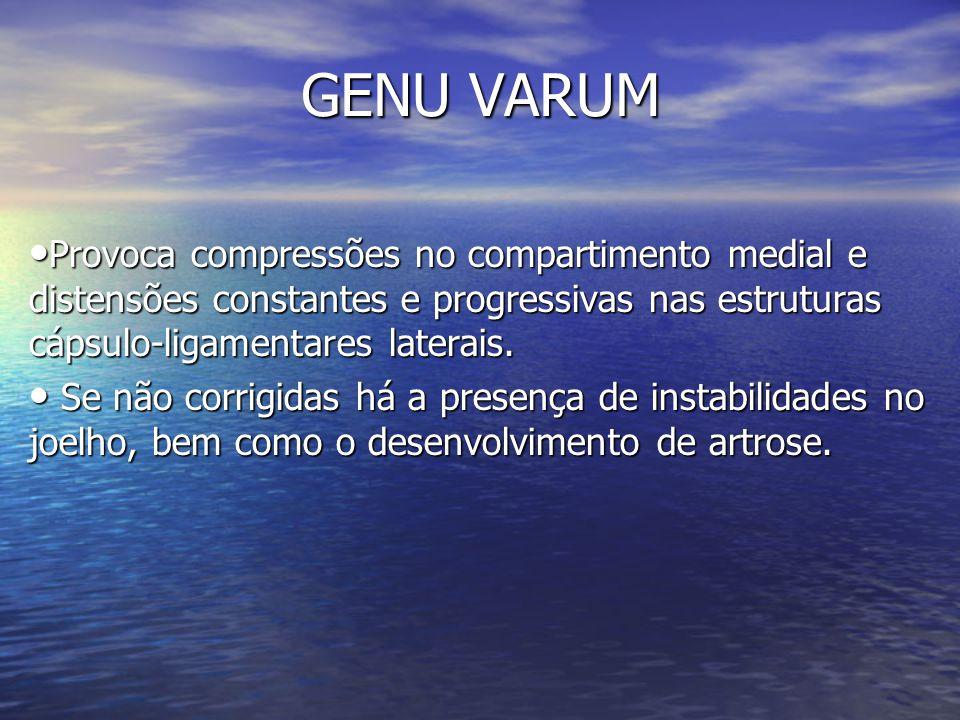 GENU VARUM Provoca compressões no compartimento medial e distensões constantes e progressivas nas estruturas cápsulo-ligamentares laterais. Provoca co