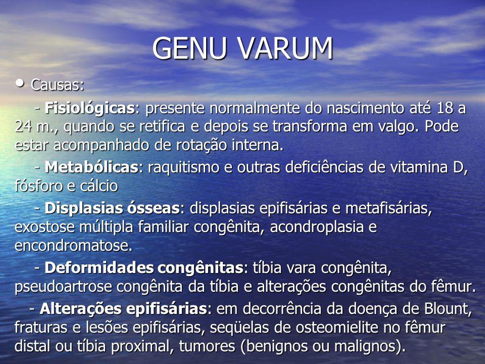 GENU VARUM Causas: Causas: - Fisiológicas: presente normalmente do nascimento até 18 a 24 m., quando se retifica e depois se transforma em valgo. Pode