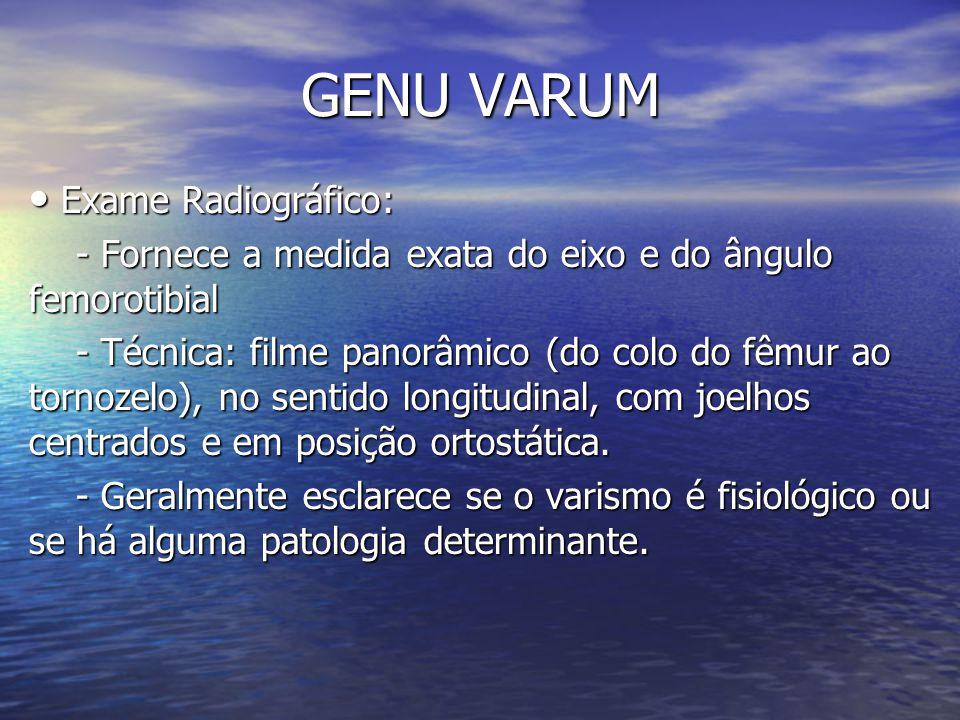 GENU VARUM Exame Radiográfico: Exame Radiográfico: - Fornece a medida exata do eixo e do ângulo femorotibial - Fornece a medida exata do eixo e do âng