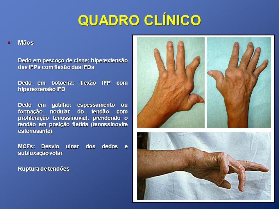 QUADRO CLÍNICO Mãos Mãos Dedo em pescoço de cisne: hiperextensão das IFPs com flexão das IFDs Dedo em botoeira: flexão IFP com hiperextensão IFD Dedo em gatilho: espessamento ou formação nodular do tendão com proliferação tenossinovial, prendendo o tendão em posição fletida (tenossinovite estenosante) MCFs: Desvio ulnar dos dedos e subluxação volar Ruptura de tendões