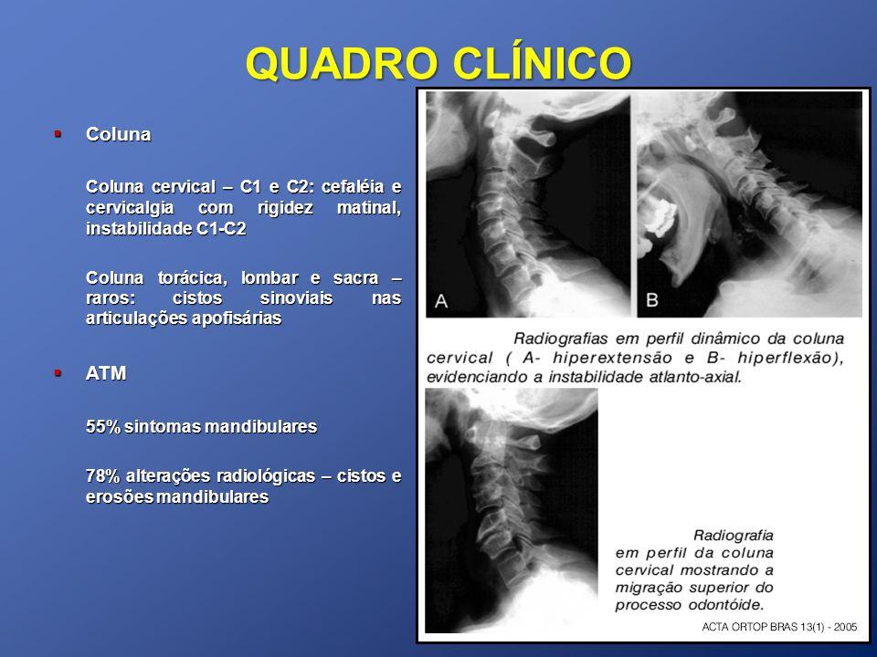 QUADRO CLÍNICO Coluna Coluna Coluna cervical – C1 e C2: cefaléia e cervicalgia com rigidez matinal, instabilidade C1-C2 Coluna torácica, lombar e sacr