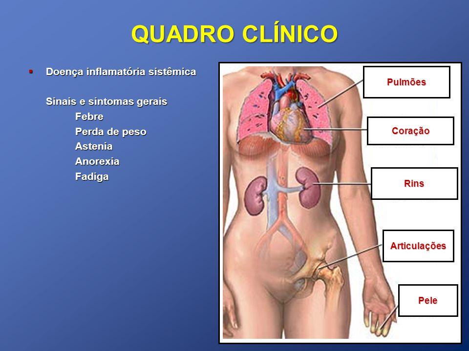 QUADRO CLÍNICO Doença inflamatória sistêmica Doença inflamatória sistêmica Sinais e sintomas gerais Febre Perda de peso AsteniaAnorexiaFadiga Pulmões Coração Rins Articulações Pele