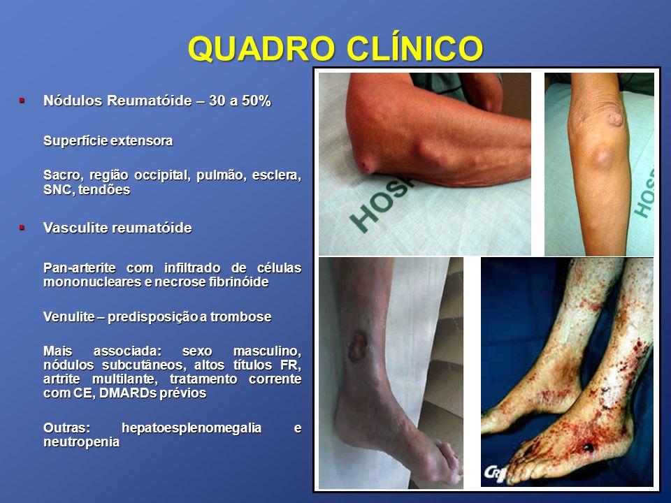 QUADRO CLÍNICO Nódulos Reumatóide – 30 a 50% Nódulos Reumatóide – 30 a 50% Superfície extensora Sacro, região occipital, pulmão, esclera, SNC, tendões Vasculite reumatóide Vasculite reumatóide Pan-arterite com infiltrado de células mononucleares e necrose fibrinóide Venulite – predisposição a trombose Mais associada: sexo masculino, nódulos subcutâneos, altos títulos FR, artrite multilante, tratamento corrente com CE, DMARDs prévios Outras: hepatoesplenomegalia e neutropenia