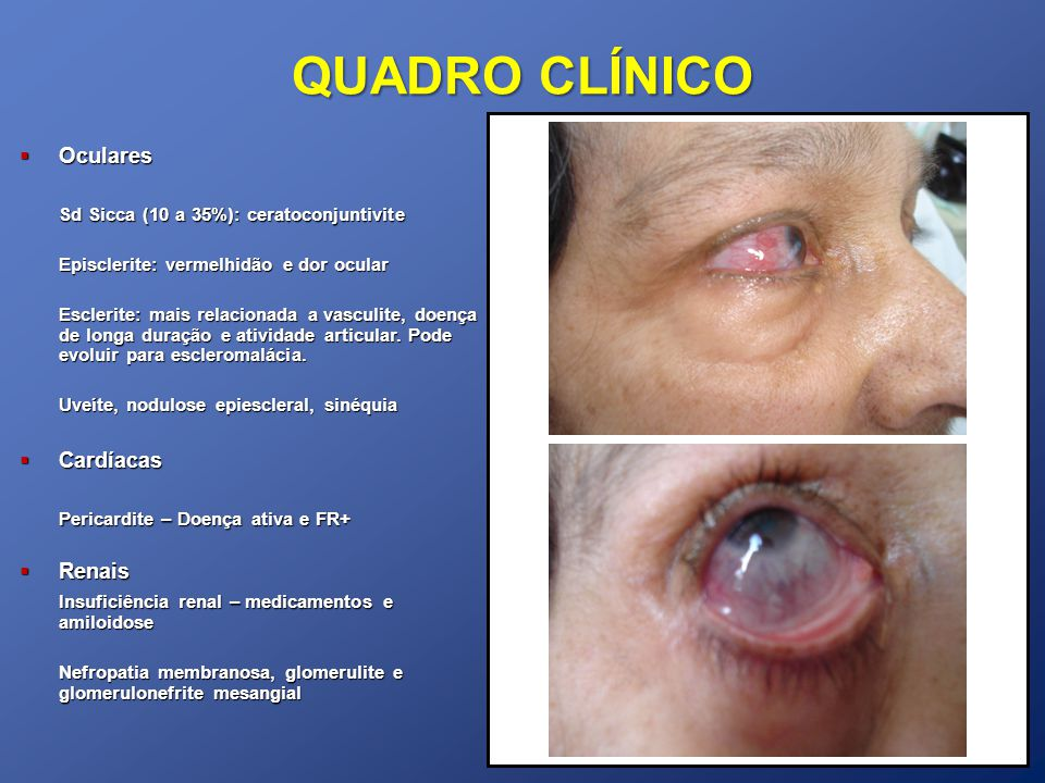 QUADRO CLÍNICO Oculares Oculares Sd Sicca (10 a 35%): ceratoconjuntivite Episclerite: vermelhidão e dor ocular Esclerite: mais relacionada a vasculite