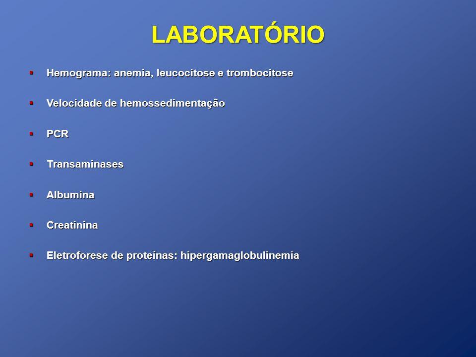 LABORATÓRIO Hemograma: anemia, leucocitose e trombocitose Hemograma: anemia, leucocitose e trombocitose Velocidade de hemossedimentação Velocidade de hemossedimentação PCR PCR Transaminases Transaminases Albumina Albumina Creatinina Creatinina Eletroforese de proteínas: hipergamaglobulinemia Eletroforese de proteínas: hipergamaglobulinemia