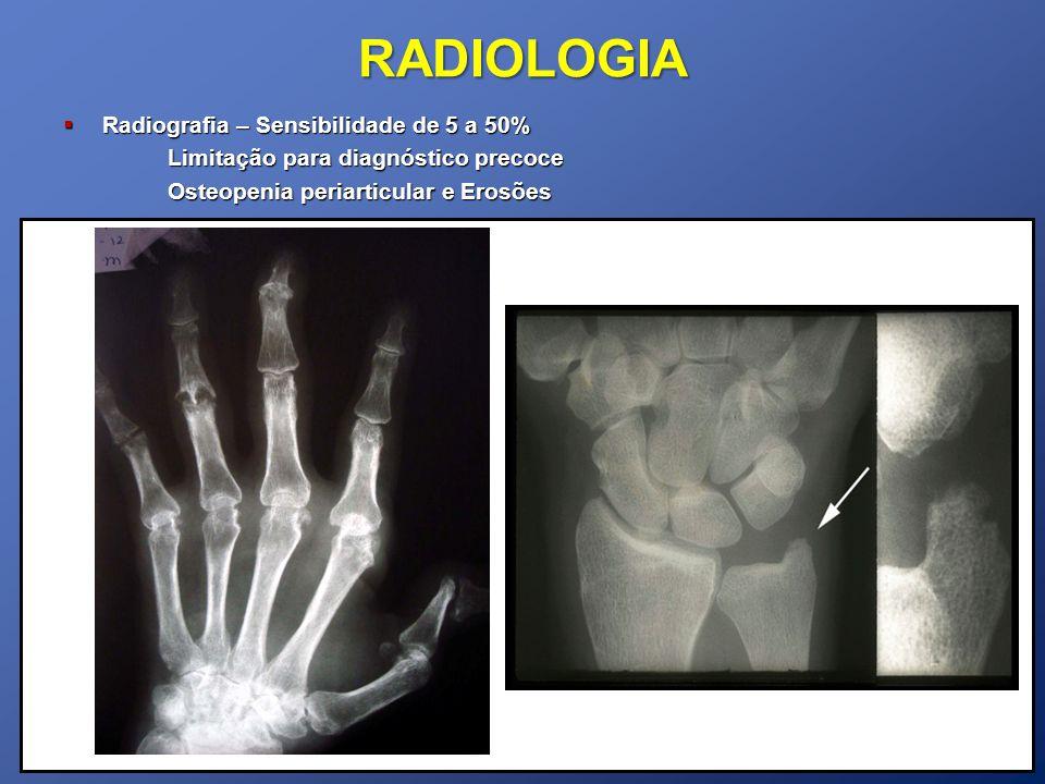 RADIOLOGIA Radiografia – Sensibilidade de 5 a 50% Radiografia – Sensibilidade de 5 a 50% Limitação para diagnóstico precoce Osteopenia periarticular e Erosões