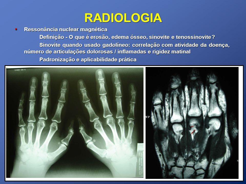 RADIOLOGIA Ressonância nuclear magnética Ressonância nuclear magnética Definição - O que é erosão, edema ósseo, sinovite e tenossinovite? Sinovite qua