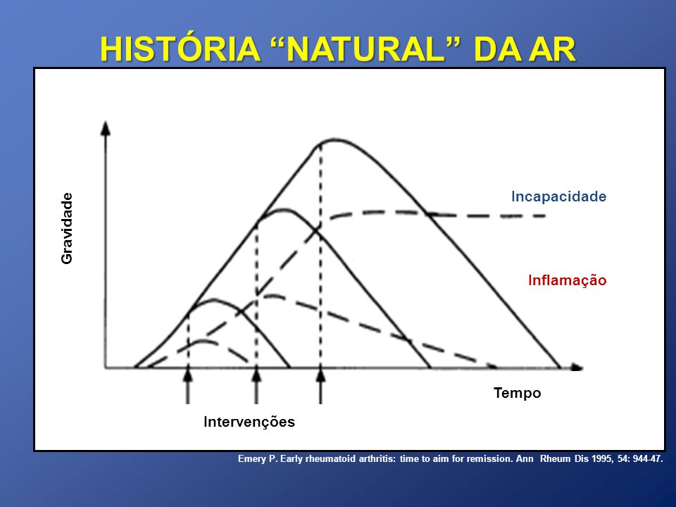 HISTÓRIA NATURAL DA AR Inflamação Incapacidade Gravidade Tempo Intervenções Emery P. Early rheumatoid arthritis: time to aim for remission. Ann Rheum