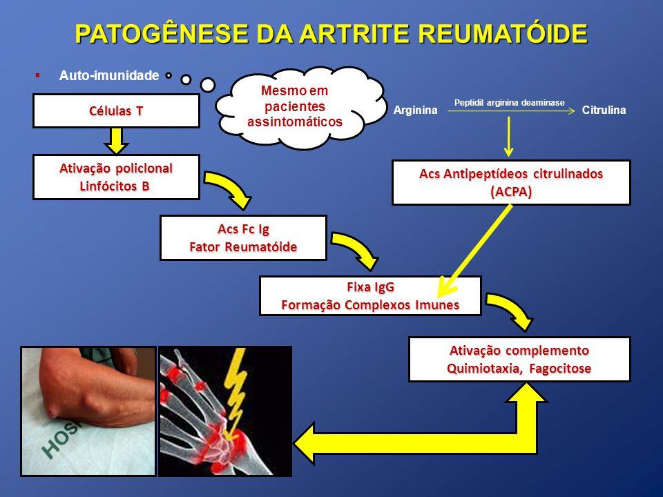 Auto-imunidade Ativação policlonal Linfócitos B Acs Fc Ig Fator Reumatóide Fixa IgG Formação Complexos Imunes Ativação complemento Quimiotaxia, Fagoci