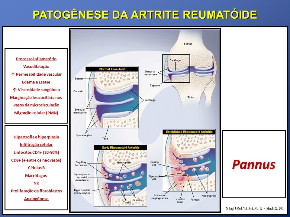PATOGÊNESE DA ARTRITE REUMATÓIDE Histologia Pannus Tecido granulomatoso (céls gigantes, macrófagos, fibroblastos) Características tumorais Invasão e destruição Secreção de enzimas proteolíticas e citocinas Ação direta sobre condrócitos e osteoclastos Infiltração inflamatório MO com agregados de linfócitos T e B