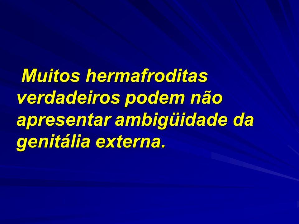 Muitos hermafroditas verdadeiros podem não apresentar ambigüidade da genitália externa. Muitos hermafroditas verdadeiros podem não apresentar ambigüid