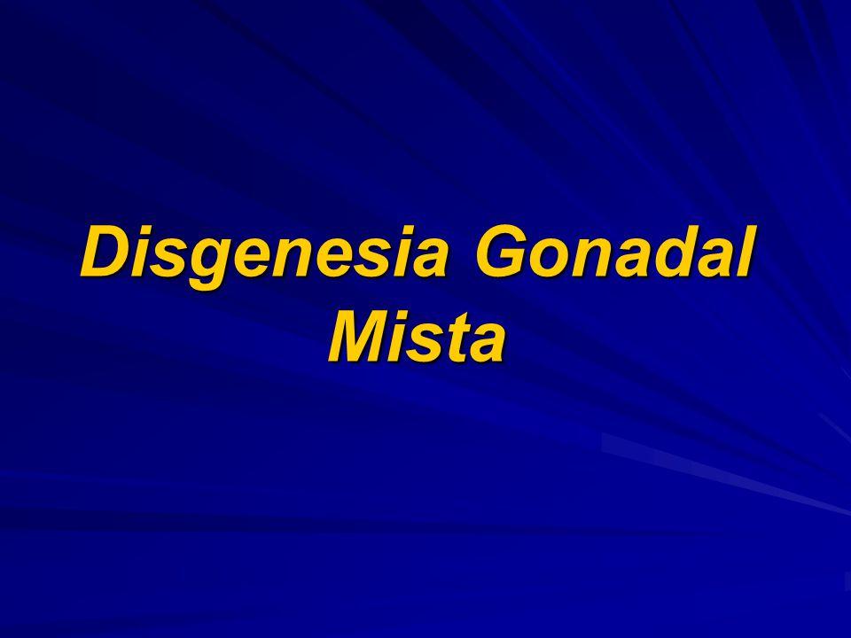 Disgenesia Gonadal Mista