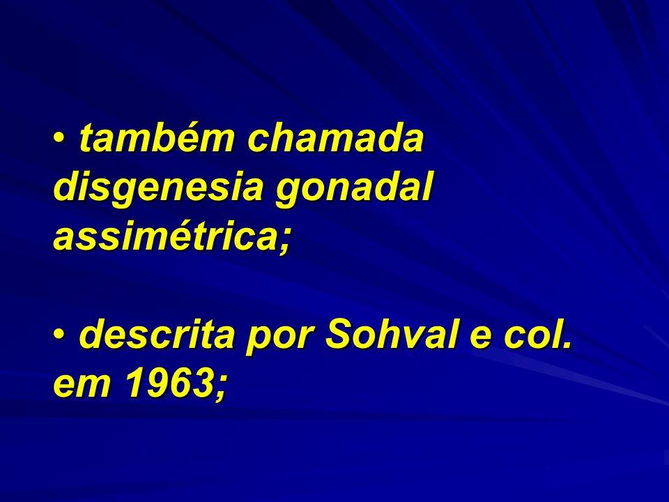 também chamada disgenesia gonadal assimétrica; também chamada disgenesia gonadal assimétrica; descrita por Sohval e col. em 1963; descrita por Sohval
