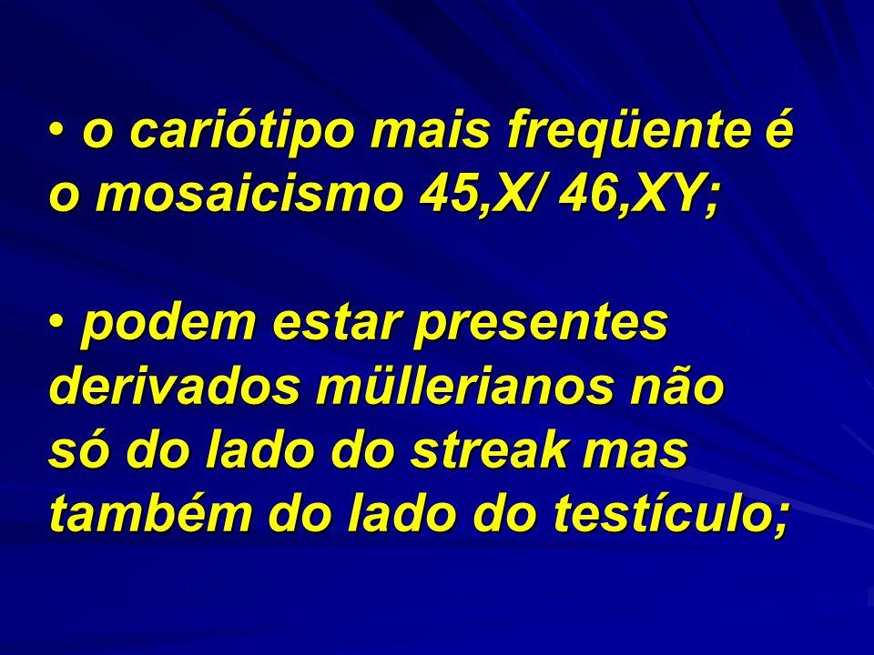 o cariótipo mais freqüente é o mosaicismo 45,X/ 46,XY; o cariótipo mais freqüente é o mosaicismo 45,X/ 46,XY; podem estar presentes derivados mülleria