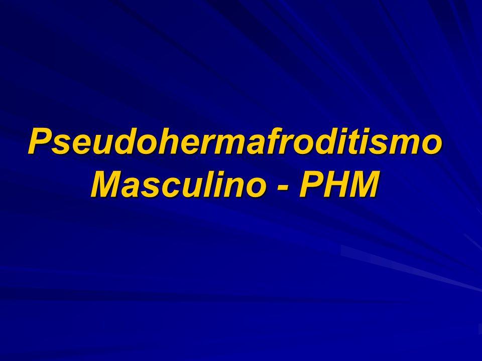 Pseudohermafroditismo Masculino - PHM