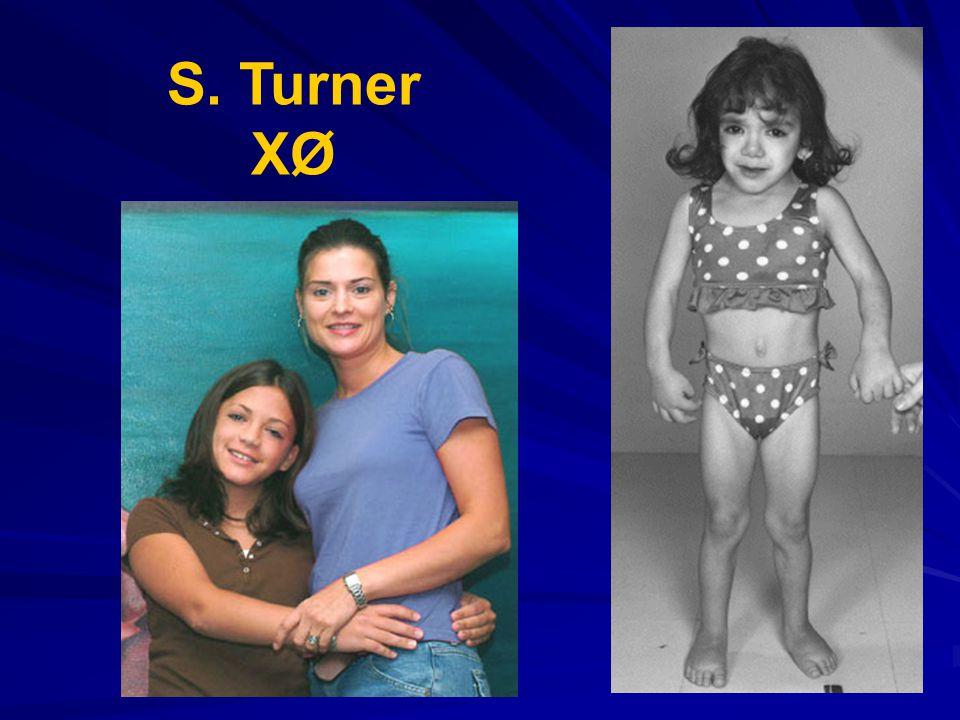 S. Turner XØ