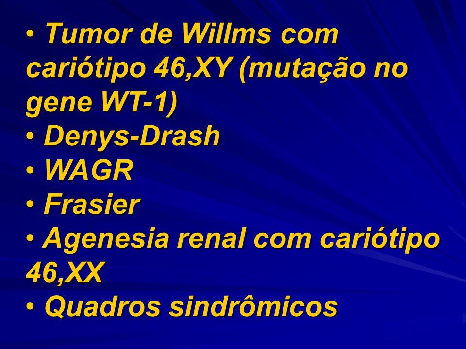 Tumor de Willms com cariótipo 46,XY (mutação no gene WT-1) Tumor de Willms com cariótipo 46,XY (mutação no gene WT-1) Denys-Drash Denys-Drash WAGR WAG