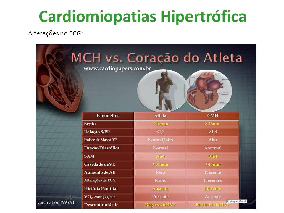Cardiomiopatias Hipertrófica Alterações no ECG: