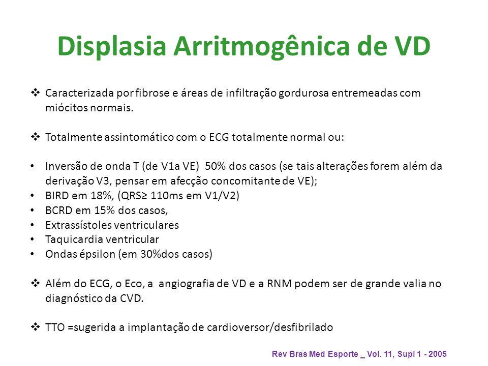 Displasia Arritmogênica de VD Caracterizada por fibrose e áreas de infiltração gordurosa entremeadas com miócitos normais. Totalmente assintomático co
