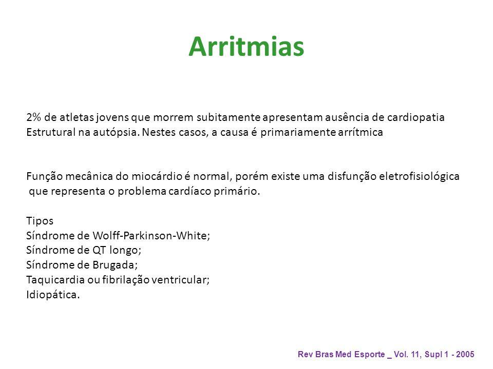 Arritmias Rev Bras Med Esporte _ Vol. 11, Supl 1 - 2005 2% de atletas jovens que morrem subitamente apresentam ausência de cardiopatia Estrutural na a