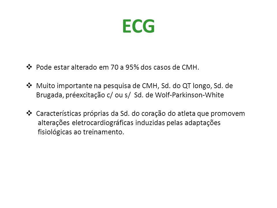 ECG Pode estar alterado em 70 a 95% dos casos de CMH.