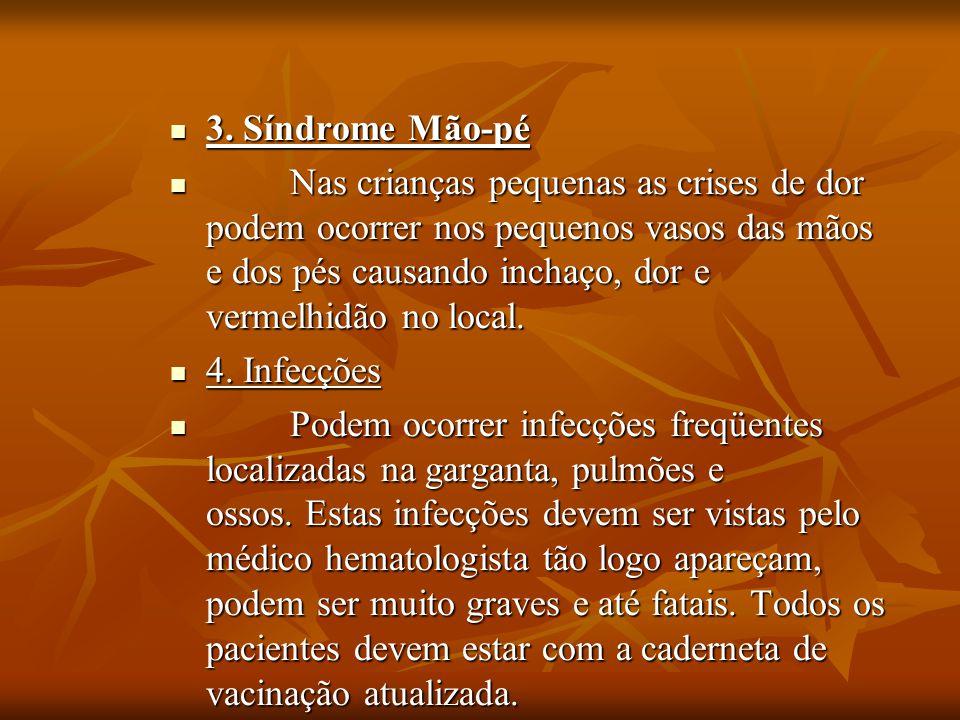 3. Síndrome Mão-pé 3. Síndrome Mão-pé Nas crianças pequenas as crises de dor podem ocorrer nos pequenos vasos das mãos e dos pés causando inchaço, dor