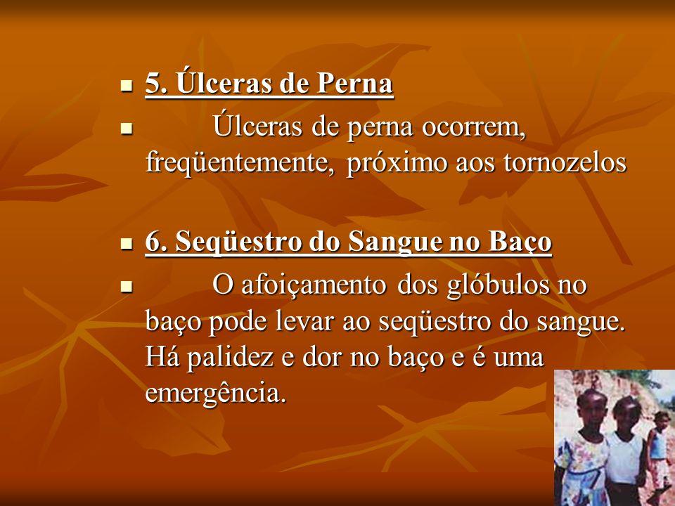 5. Úlceras de Perna 5. Úlceras de Perna Úlceras de perna ocorrem, freqüentemente, próximo aos tornozelos Úlceras de perna ocorrem, freqüentemente, pró