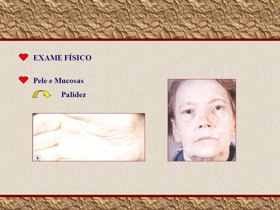 EXAME FÍSICO Pele e Mucosas Palidez