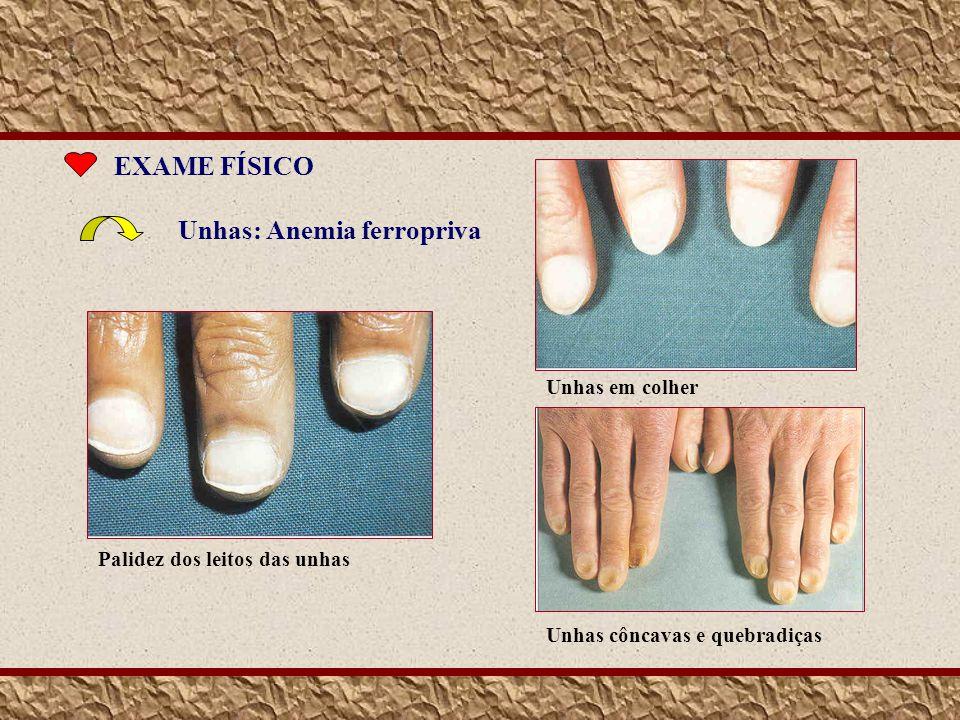 Unhas: Anemia ferropriva EXAME FÍSICO Palidez dos leitos das unhas Unhas em colherUnhas côncavas e quebradiças
