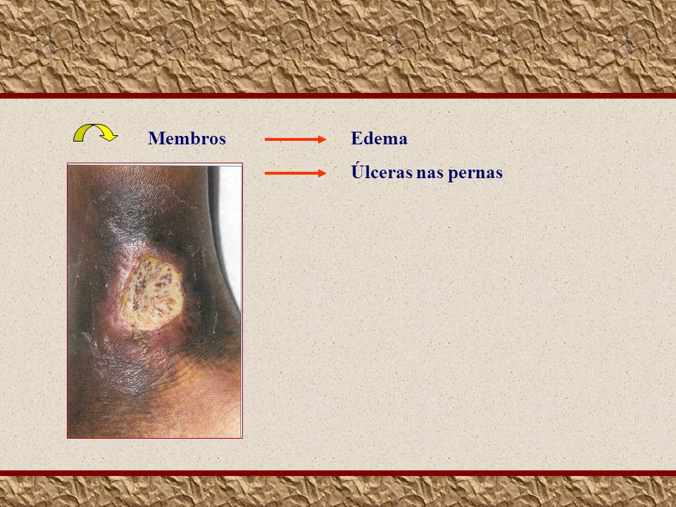 MembrosEdema Úlceras nas pernas
