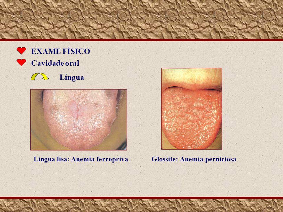 EXAME FÍSICO Cavidade oral Língua Língua lisa: Anemia ferropriva Glossite: Anemia perniciosa