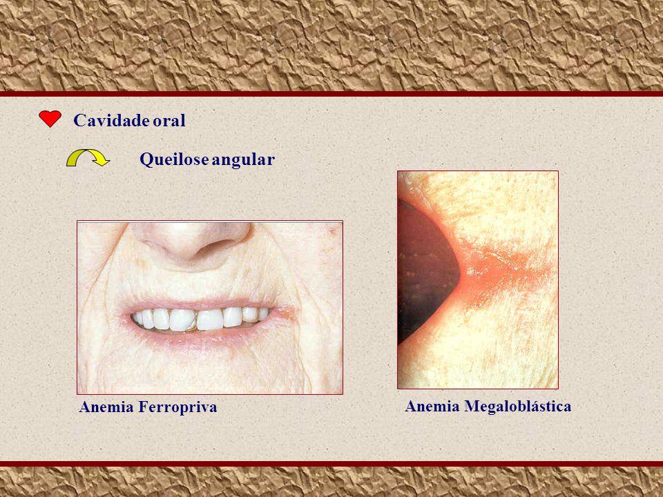 Cavidade oral Queilose angular Anemia Ferropriva Anemia Megaloblástica
