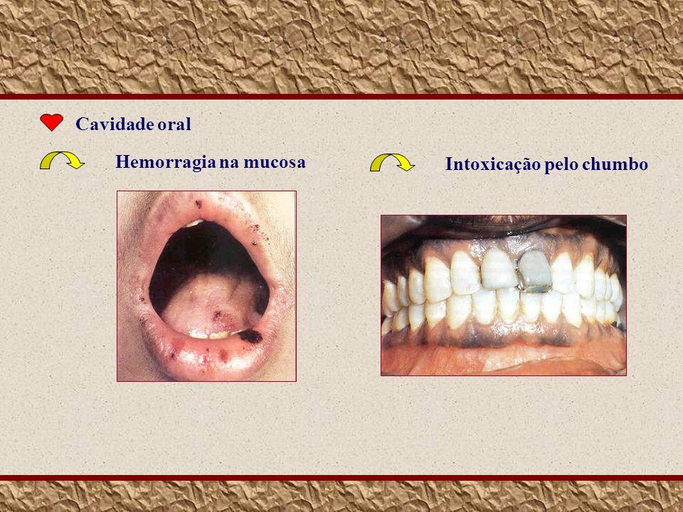 Cavidade oral Hemorragia na mucosa Intoxicação pelo chumbo
