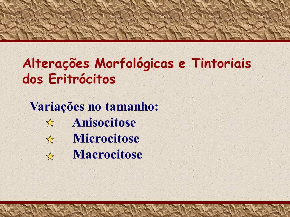 Alterações Morfológicas e Tintoriais dos Eritrócitos Variações no tamanho: Anisocitose Microcitose Macrocitose
