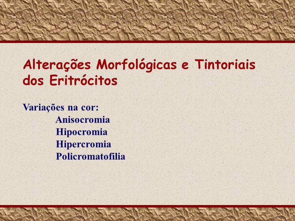 Variações na cor: Anisocromia Hipocromia Hipercromia Policromatofilia Alterações Morfológicas e Tintoriais dos Eritrócitos