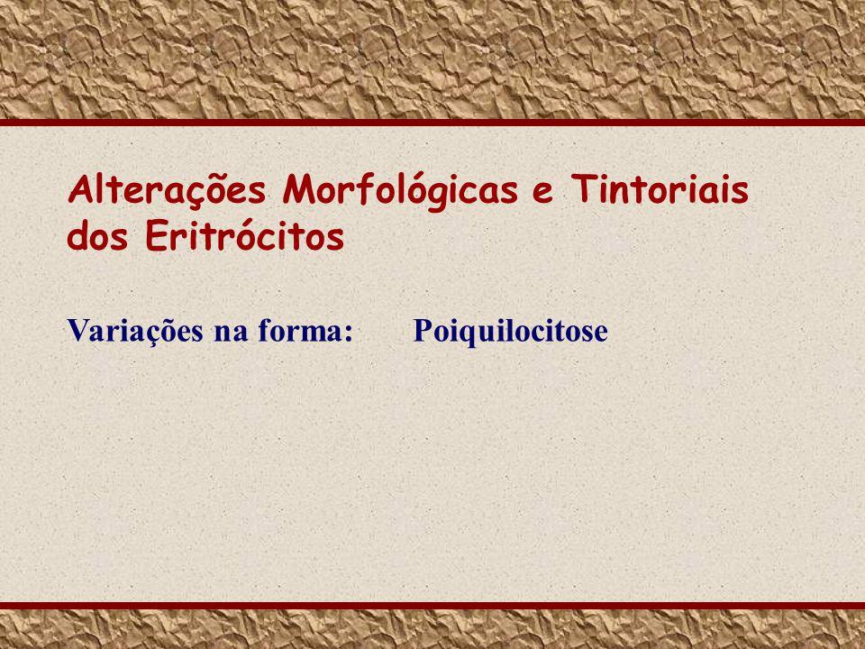 Alterações Morfológicas e Tintoriais dos Eritrócitos Variações na forma: Poiquilocitose