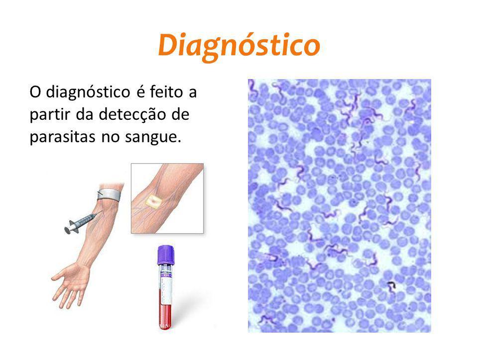 Diagnóstico O diagnóstico é feito a partir da detecção de parasitas no sangue.
