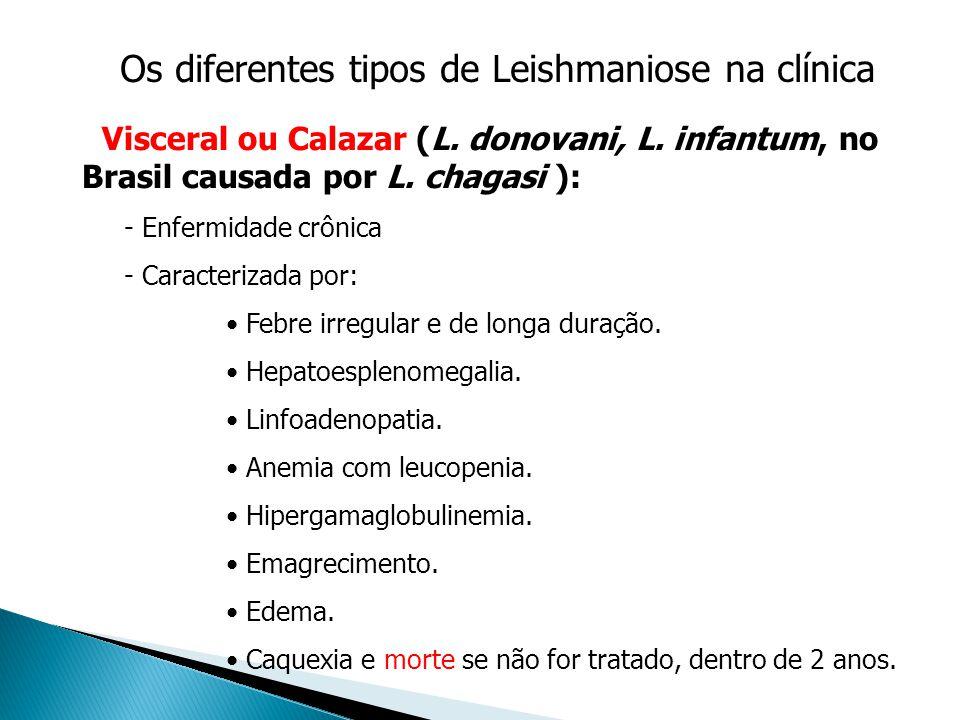 Os diferentes tipos de Leishmaniose na clínica Visceral ou Calazar (L. donovani, L. infantum, no Brasil causada por L. chagasi ): - Enfermidade crônic