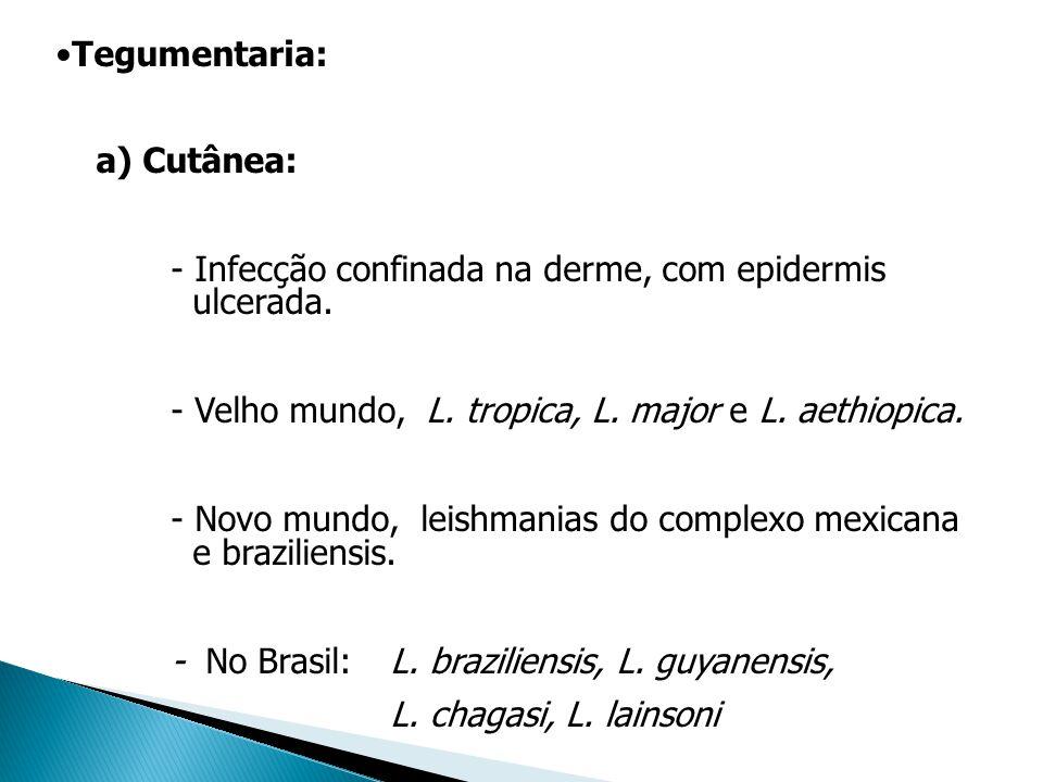 Tegumentaria: a) Cutânea: - Infecção confinada na derme, com epidermis ulcerada. - Velho mundo, L. tropica, L. major e L. aethiopica. - Novo mundo, le