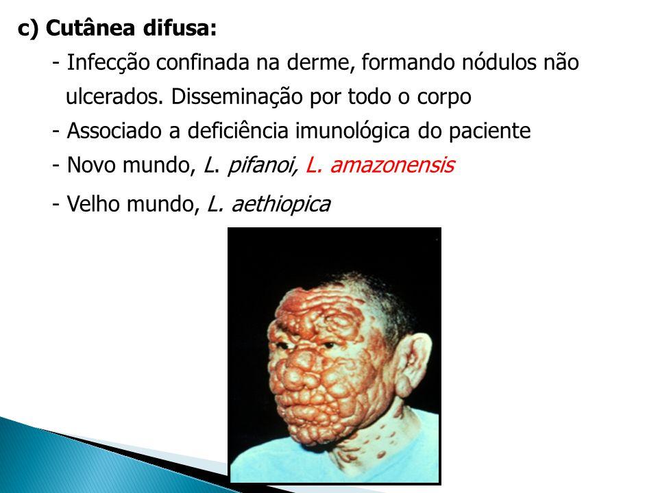 c) Cutânea difusa: - Infecção confinada na derme, formando nódulos não ulcerados. Disseminação por todo o corpo - Associado a deficiência imunológica
